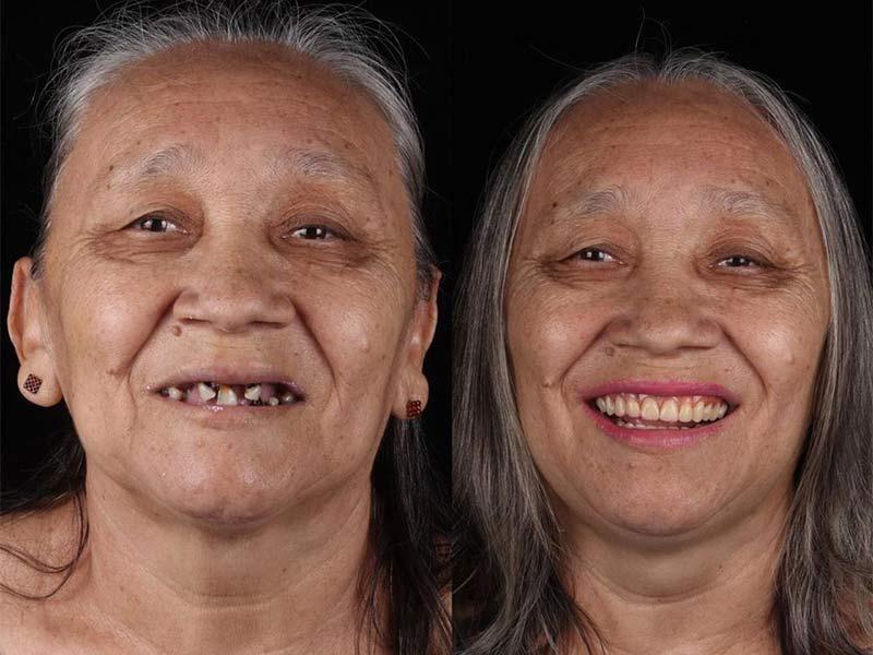 el dentista solidario que regala tratamiento dental a los más desfavorecidos